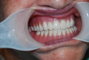 Nepean all on 4 implants dentures