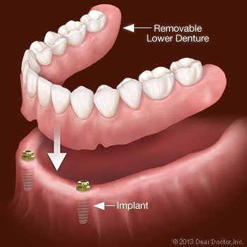 Implants removable lower dentures