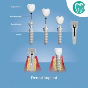 teeth-dental-implant